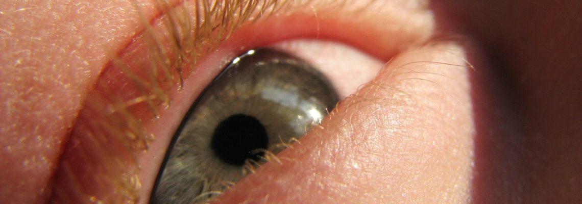 Alergija-oči